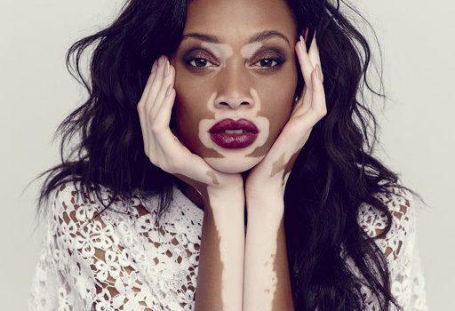 World Vitiligo Day, oggi si celebra la giornata mondiale dedicata alla vitiligine